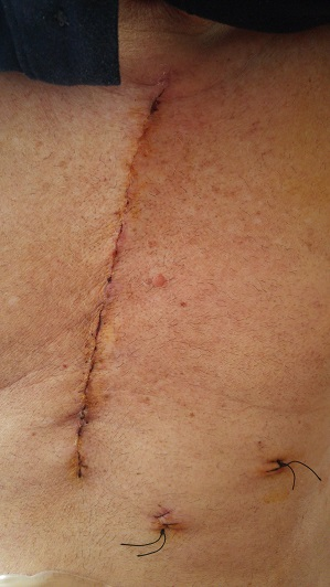 Hess's chest wound